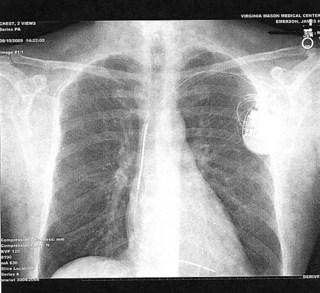 chest1.jpg_0001.jpg
